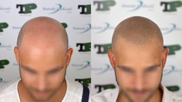 Alopecia: la tricopigmentazione è una delle soluzioni estetiche