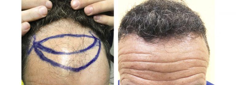 Trapianto di capelli in Turchia: ne vale la pena? Offerta Speciale Italia