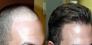 Cosa fare dopo un trapianto di capelli